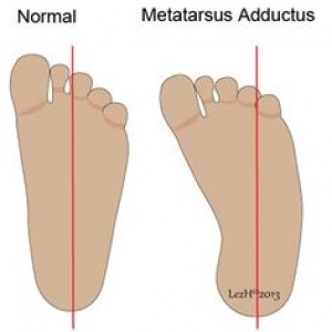 Positional Talipes and Metatarsus Adductus
