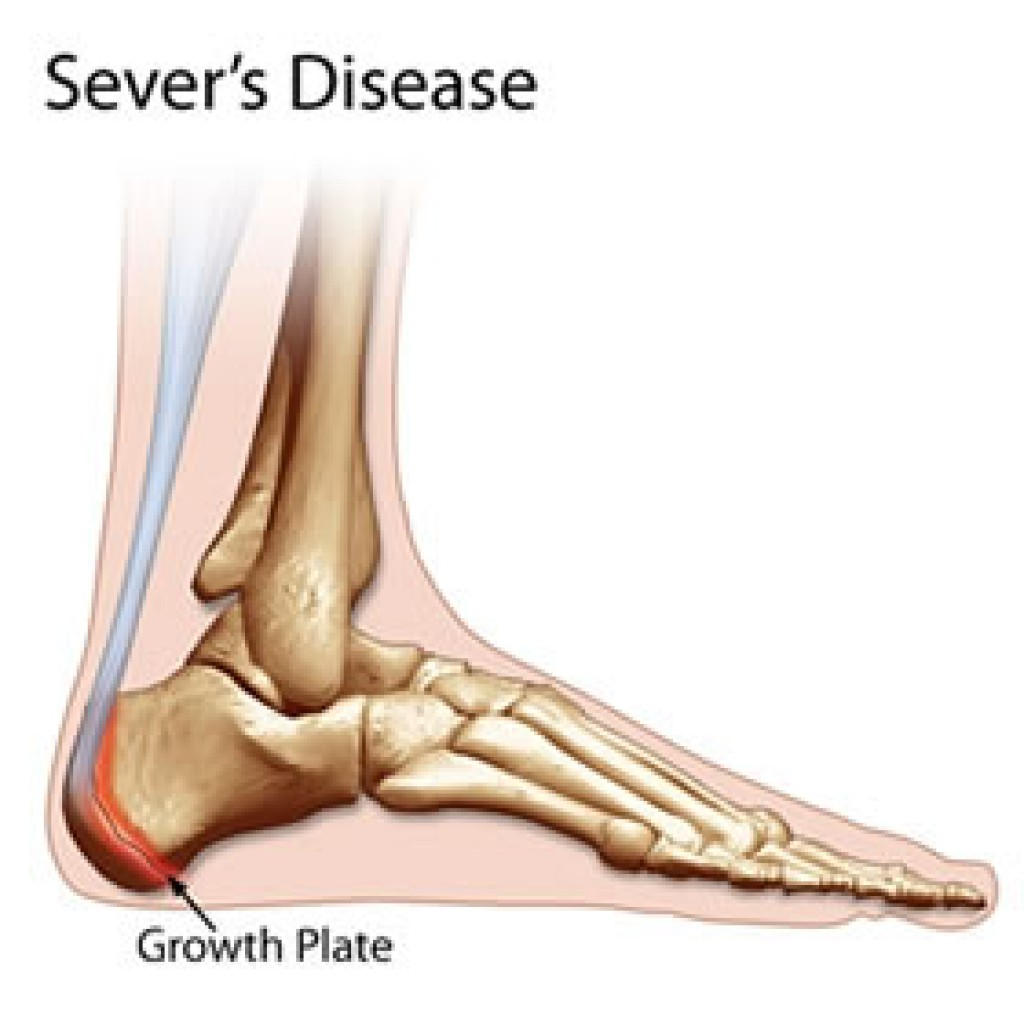 The Podiatry Group: Heel Pain/ Sever\'s Disease